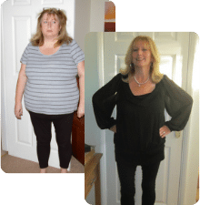 Jackie before and after weight-loss surgery from weight loss surgery Kent